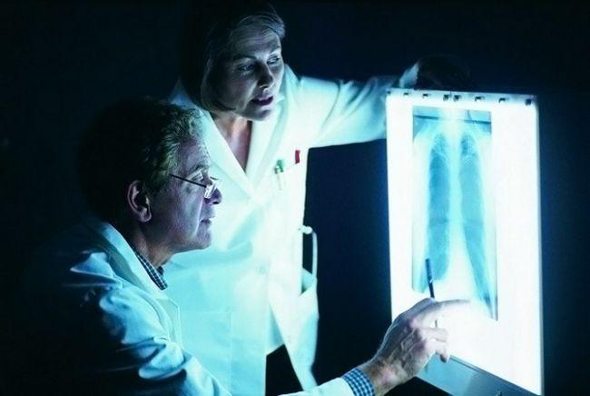 Что лечит врач-пульмонолог?