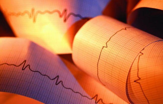 Как снять кардиограмму