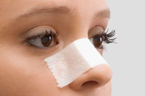 Как исправить нос